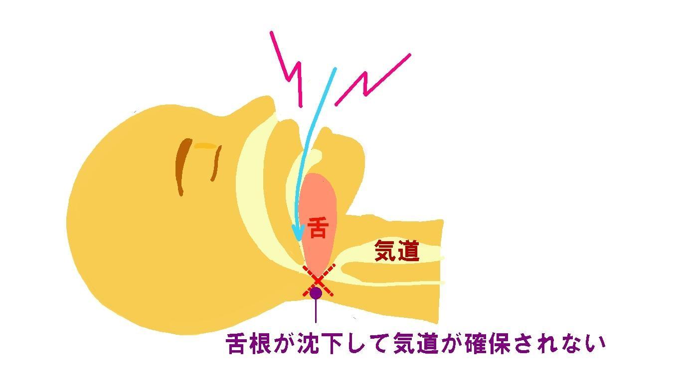 【イラストで解説】いびきをかく原因はストレートネックにもある?