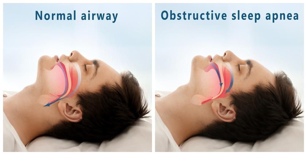 口呼吸の対策だけで朝がスッキリ!1日30円で実現する健康法とは?