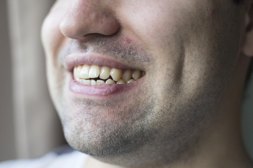歯ぎしりと合わせて注意したい!ストレスで悪化するいびきの恐ろしさ